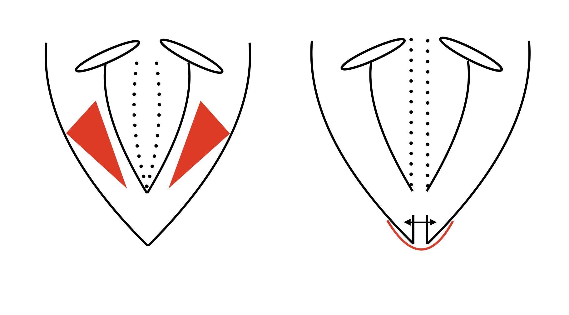 Figuur 1. Meest gebruikte operatietechnieken voor AdSD_